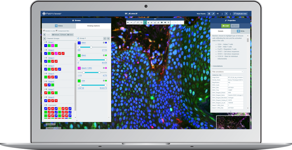 laptop display showing fluorescence image with multiple channels arranged in groups using PathViewer, Glencoe Software's digital pathology solution