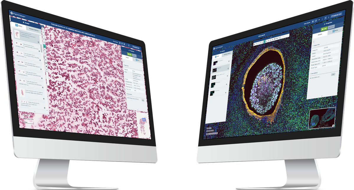 PathViewer, Glencoe Software's Digital Pathology solution, displayed on dual monitors showing digital pathology and fluorescence images